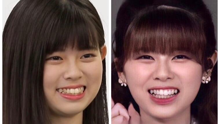 NiziUリクの歯並びの比較画像
